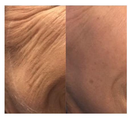 Skinboosters