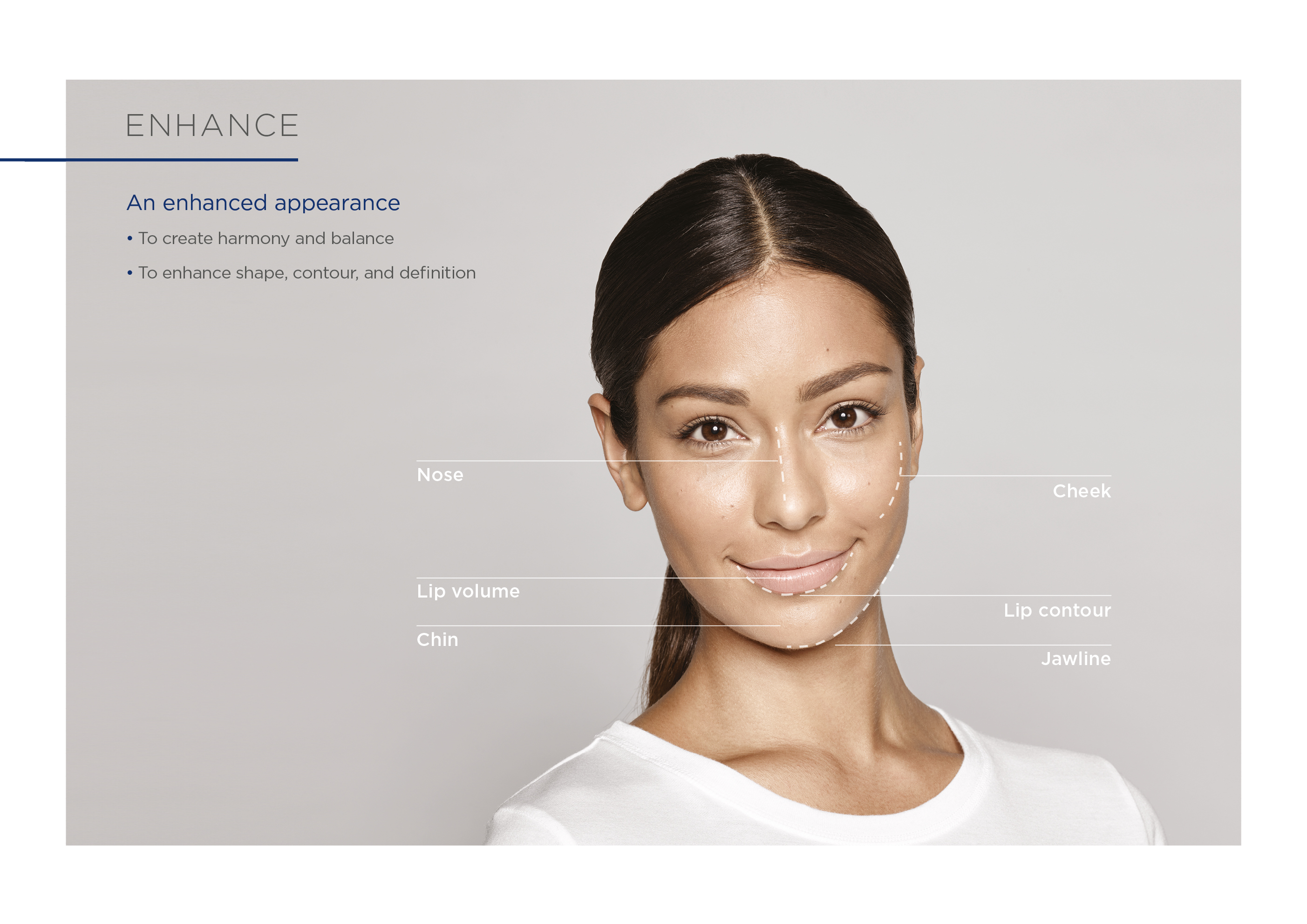 """Résultat de recherche d'images pour """"RESTYLANE KYSSE FACE INJECTION"""""""